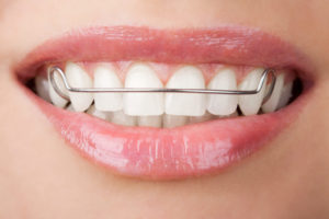 LOOSE, TIGHT OR BROKEN RETAINERS